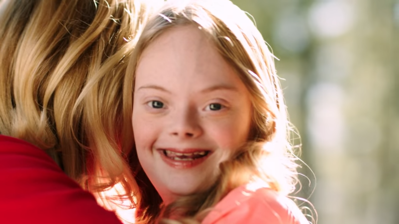 sexy downs syndrome girl