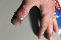 A Portland police sergeant, says the police statement, 'was directly struck by a commercial grade firework, which burned through his glove and injured his hand.' (Photo by Portland Police Bureau)